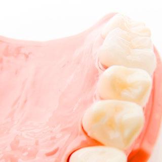 セラミックス 天然歯に近い機能性を
